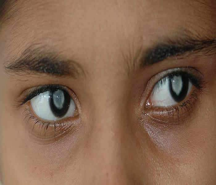 CATARACTS: MEANING, TYPES, SYMPTOMS, PREVENTION, TREATMENTS AND HOME REMEDIES