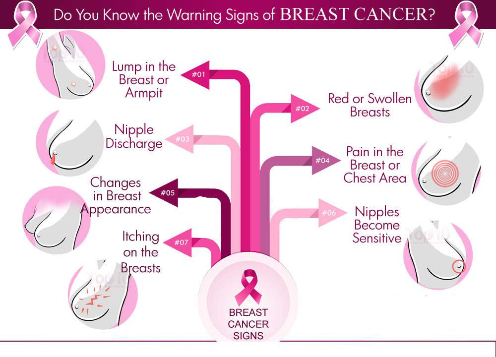 Breast Cancer- Causes, Symptoms, Diagnosis, Prevention and Treatment