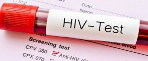 hiv aids what you need to know
